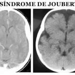 Síndrome de Joubert: síndrome, causas, tratamientos