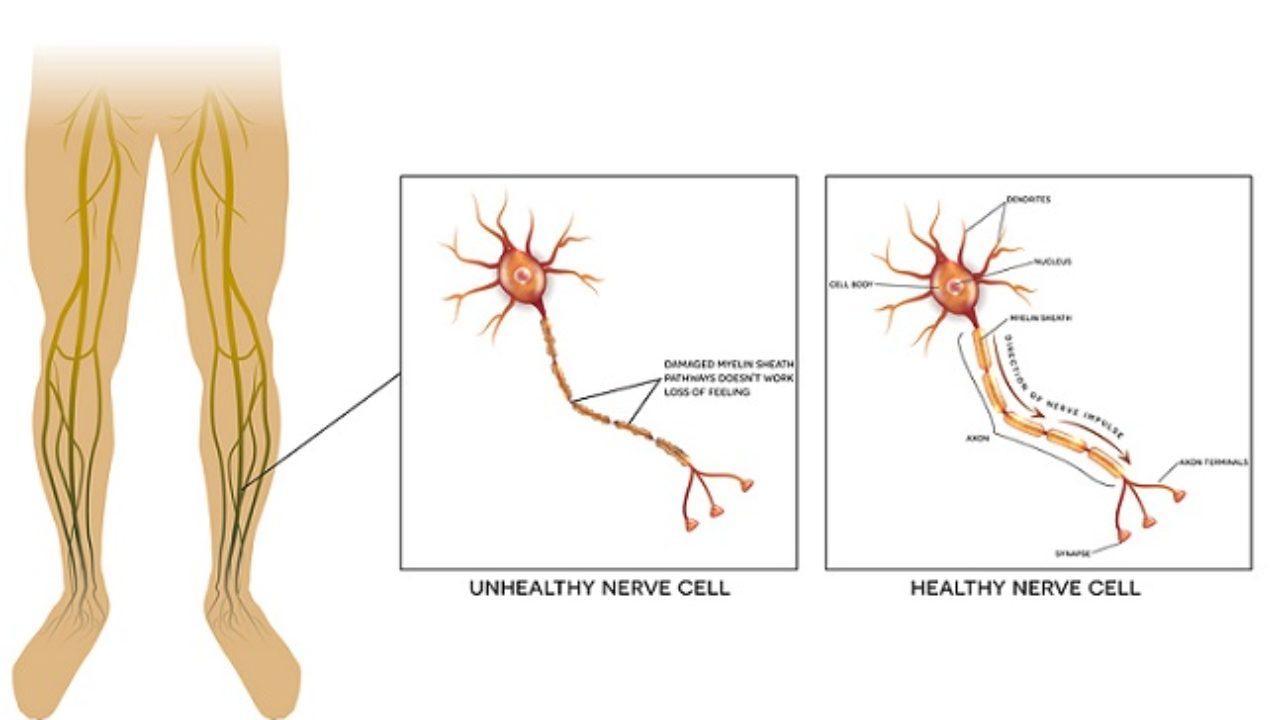 ¿Qué causa la neuropatía en la diabetes mellitus?