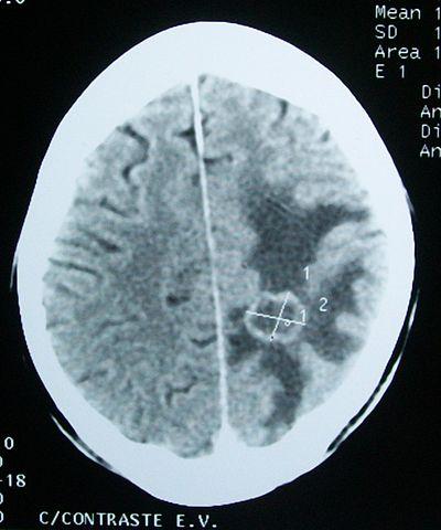 ¿Una tomografía computarizada detecta daño cerebral