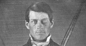 Phineas Gage después del accidente