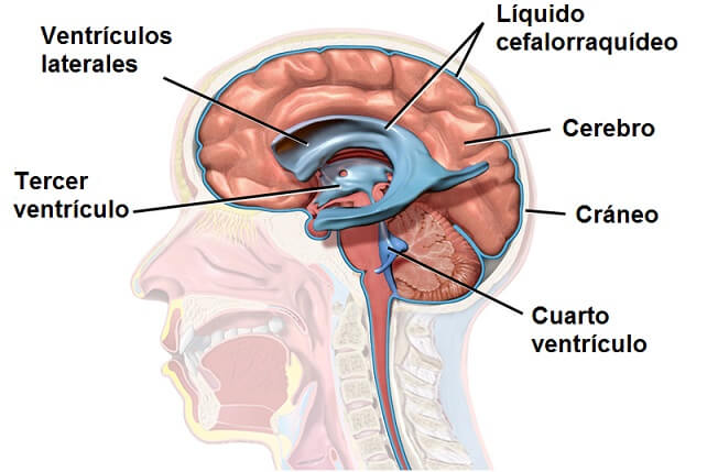 ¿Puede el líquido cefalorraquídeo causar dolores de cabeza?