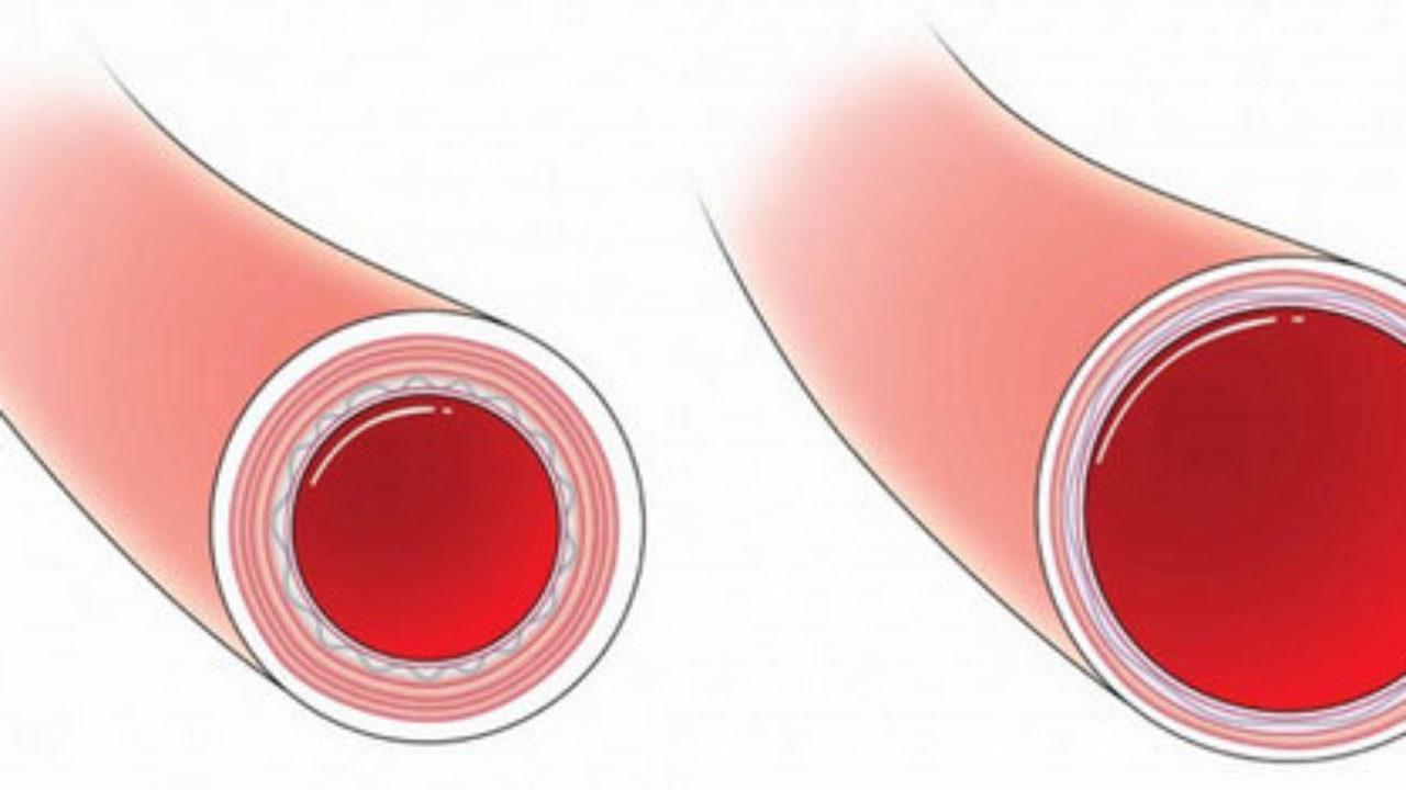 La presión sanguínea en la circulación sistémica es más baja en los capilares