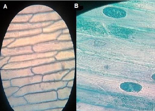 Epidermis De Cebolla Observación Al Microscopio