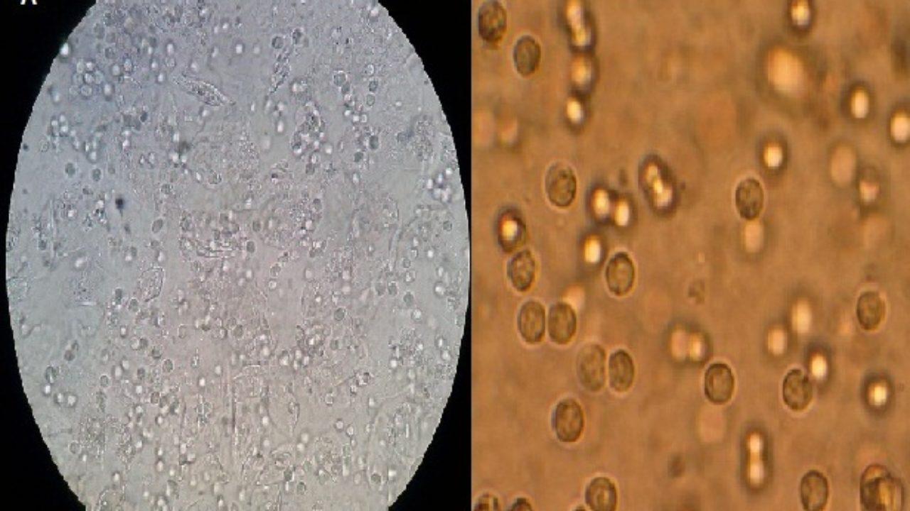 cristales oxalato calcico dihidrato orina