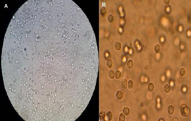 Piocitos en orina sin bacterias
