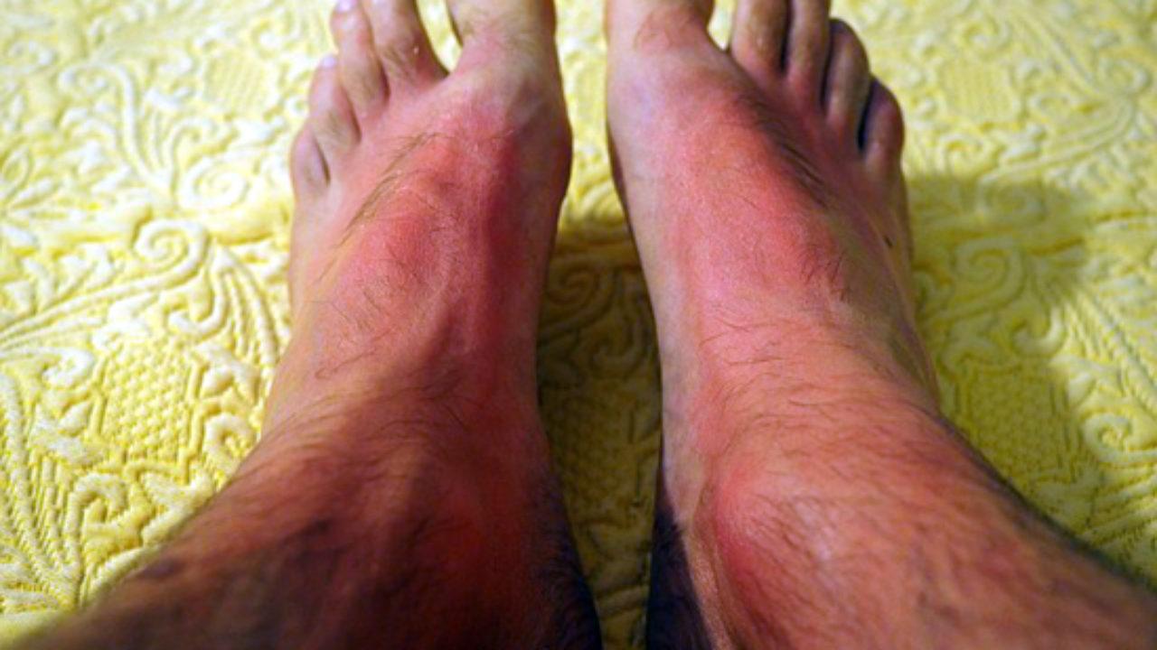 enrojecimiento de la piel debido a capilares dilatados