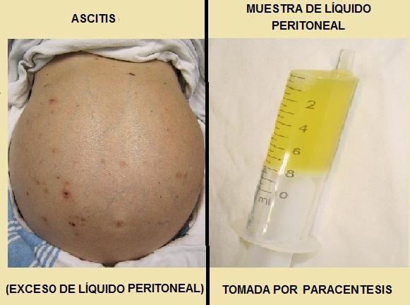 acumulacion de liquido en la cavidad abdominal