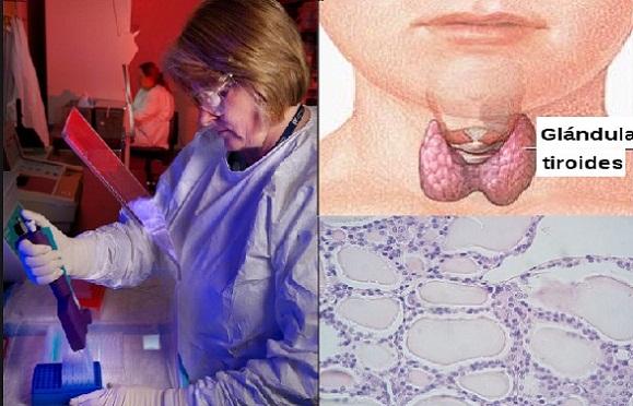 hormona estimulante del tiroides ultrasensible baja